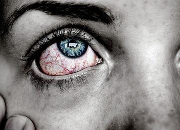 Vnetje očesnih vek ali blefaritis – kako zdravimo vnetje?