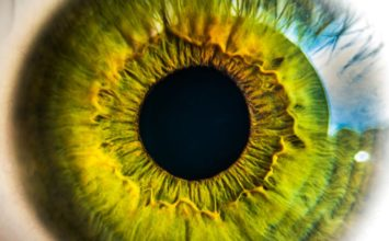 Nevritis vidnega živca – optični nevritis