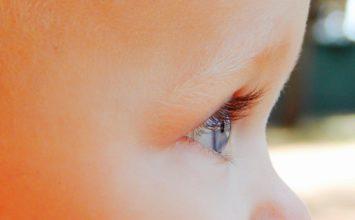 Milije – imate okrog oči bele pikice? Preverite, kako se jih znebiti