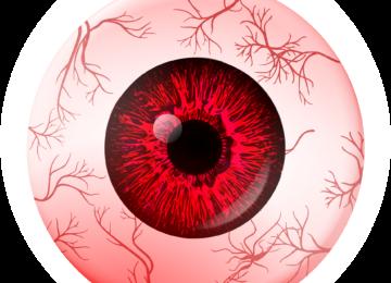 Uveitis – vzroki, simptomi in zdravljenje