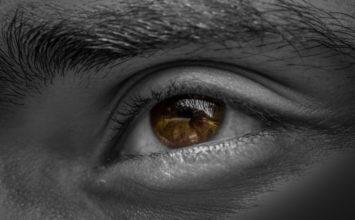Kako odpraviti suho kožo okrog oči
