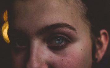 Bolezni beločnice – skleritis in episkleritis