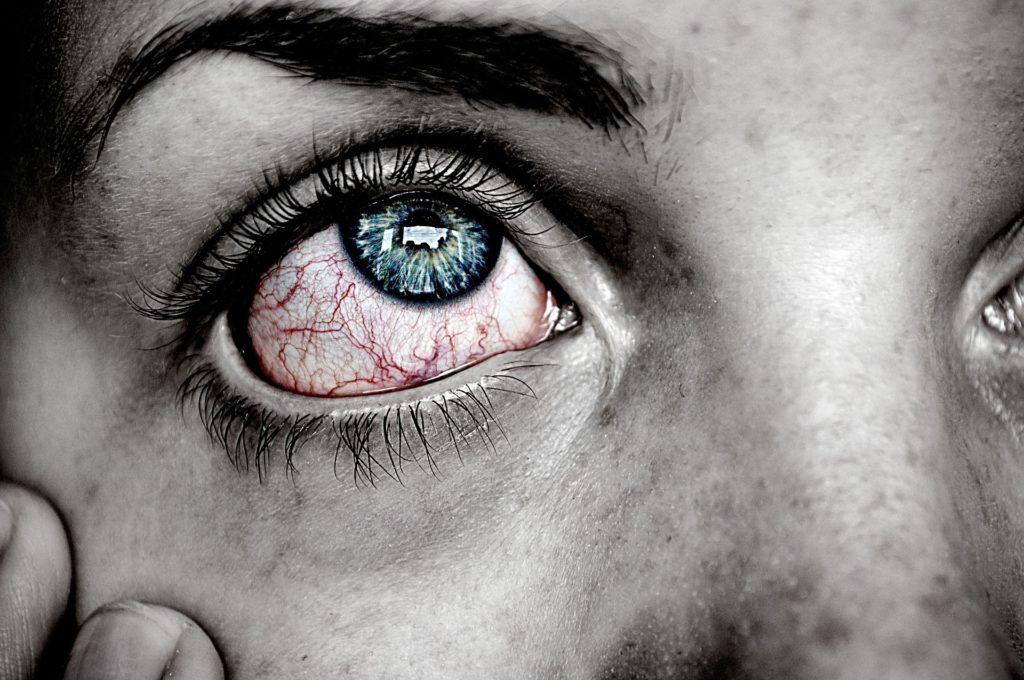 Sjögrenov sindrom
